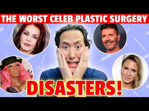 These Five Celebrity Plastic Surgery Horror Stories Will Blow Your Mind! – Dr. Anthony Youn