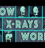 How X-rays see through your skin – Ge Wang