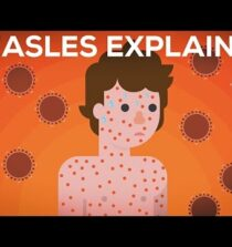 Measles Explained — Vaccinate or Not?